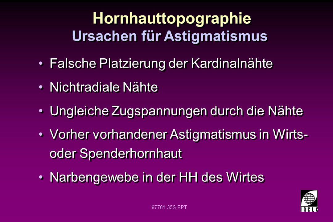 Ursachen für Astigmatismus