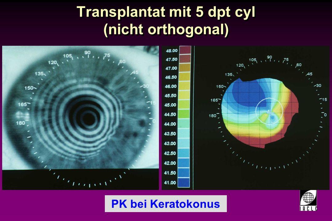 Transplantat mit 5 dpt cyl (nicht orthogonal)