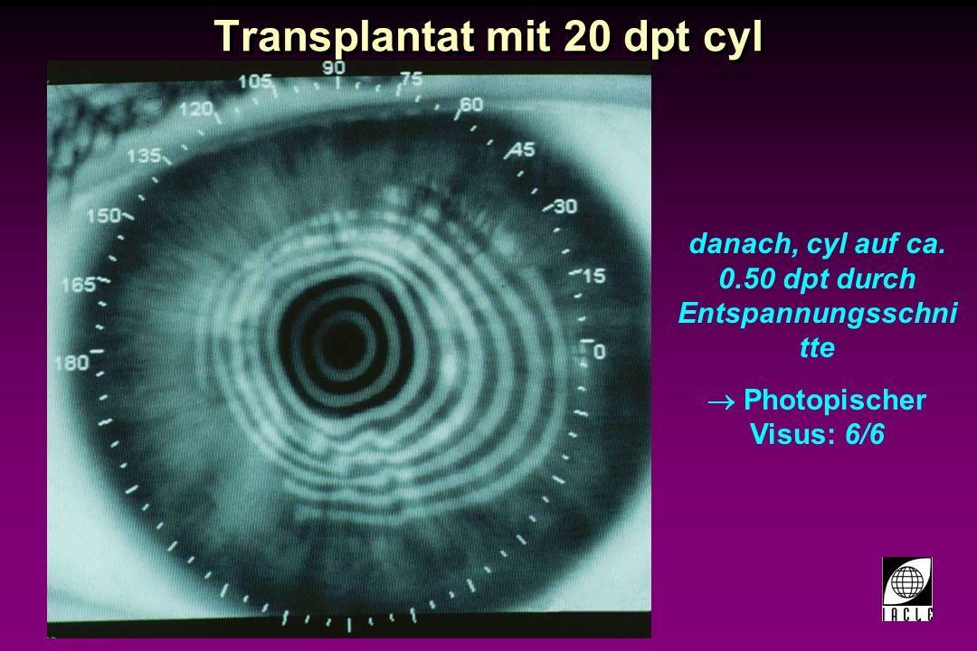 Transplantat mit 20 dpt cyl