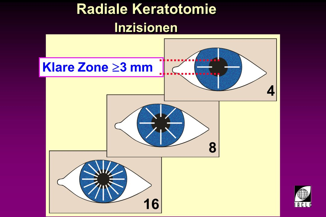 Radiale Keratotomie Inzisionen