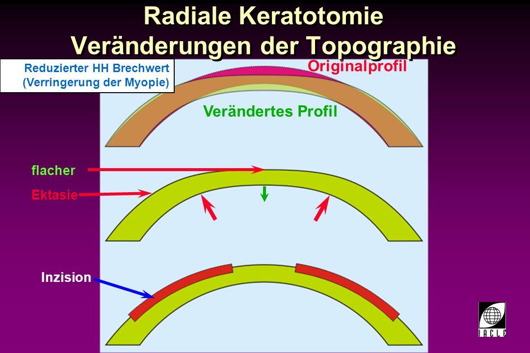 Radiale Keratotomie Veränderungen der Topographie