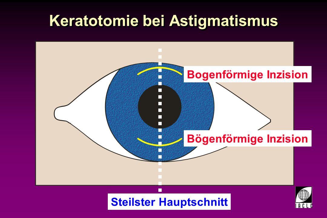 Keratotomie bei Astigmatismus
