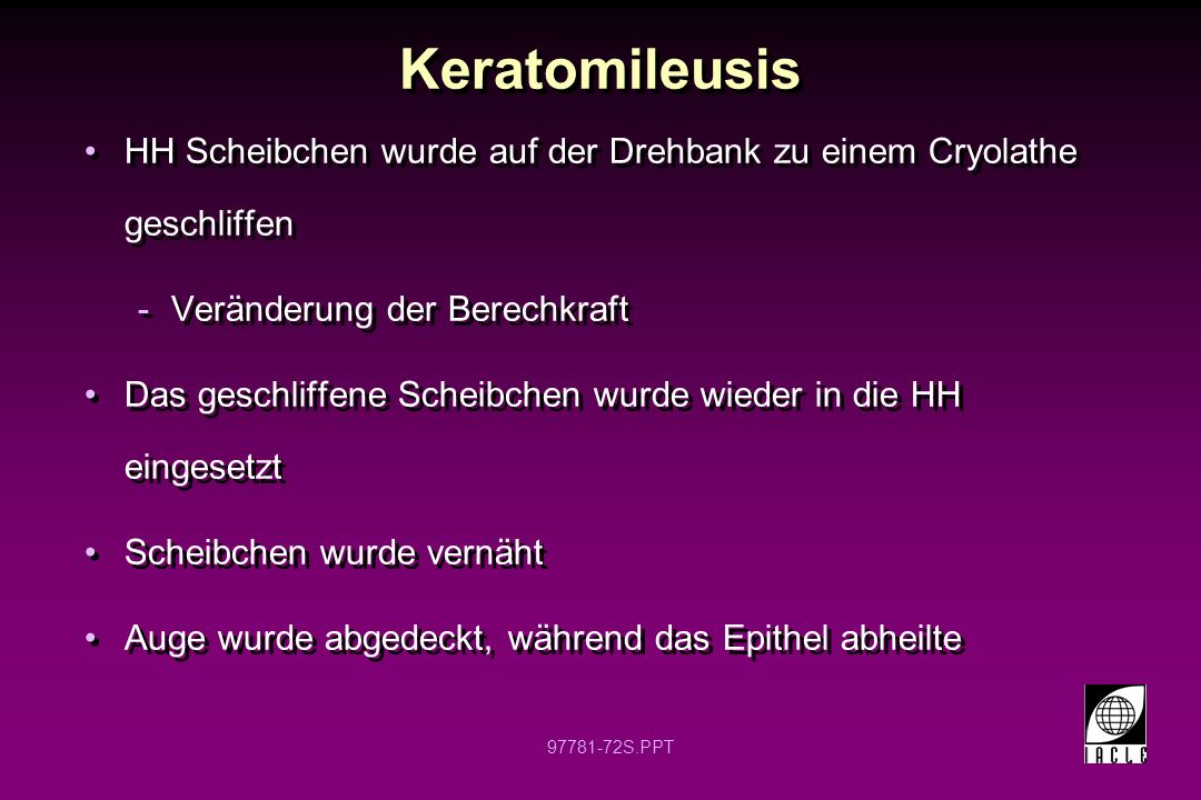 Keratomileusis HH Scheibchen wurde auf der Drehbank zu einem Cryolathe geschliffen. Veränderung der Berechkraft.