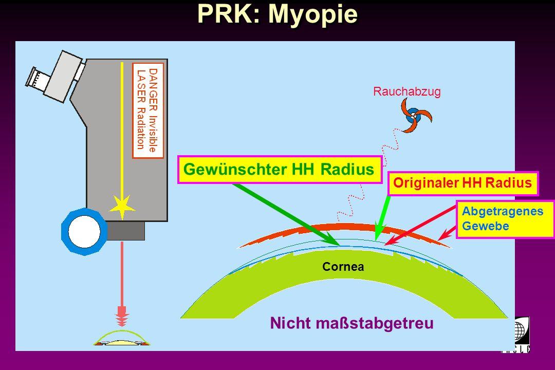 PRK: Myopie Gewünschter HH Radius Nicht maßstabgetreu