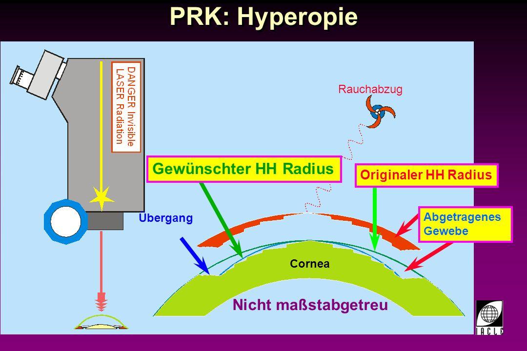 PRK: Hyperopie Gewünschter HH Radius Nicht maßstabgetreu