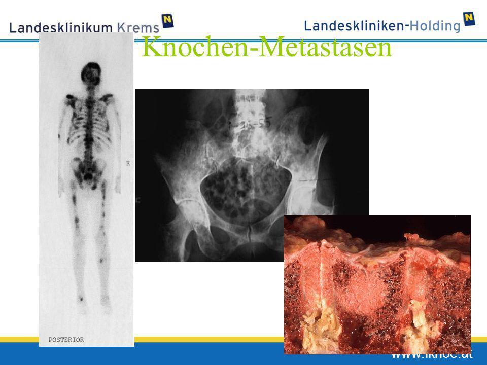 Knochen-Metastasen