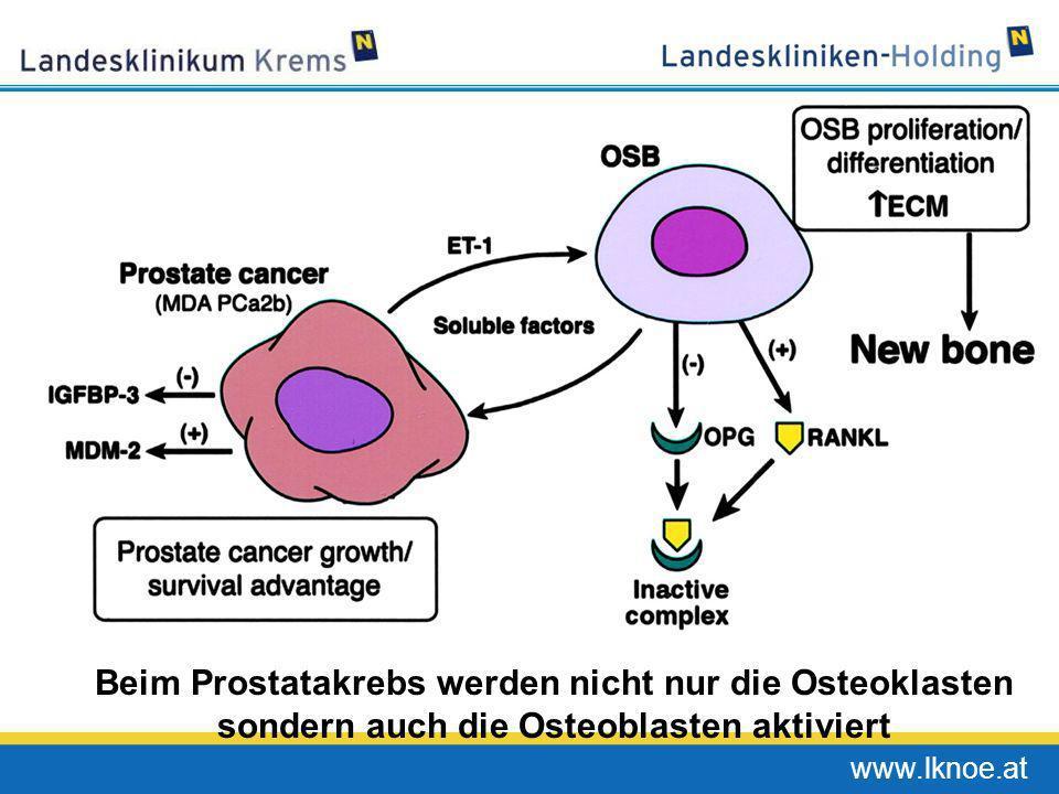 Beim Prostatakrebs werden nicht nur die Osteoklasten sondern auch die Osteoblasten aktiviert