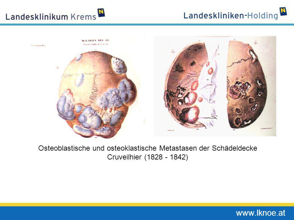 Osteoblastische und osteoklastische Metastasen der Schädeldecke