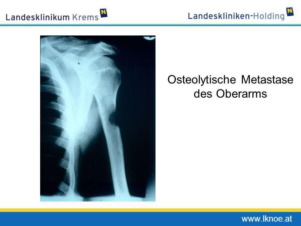 Osteolytische Metastase des Oberarms