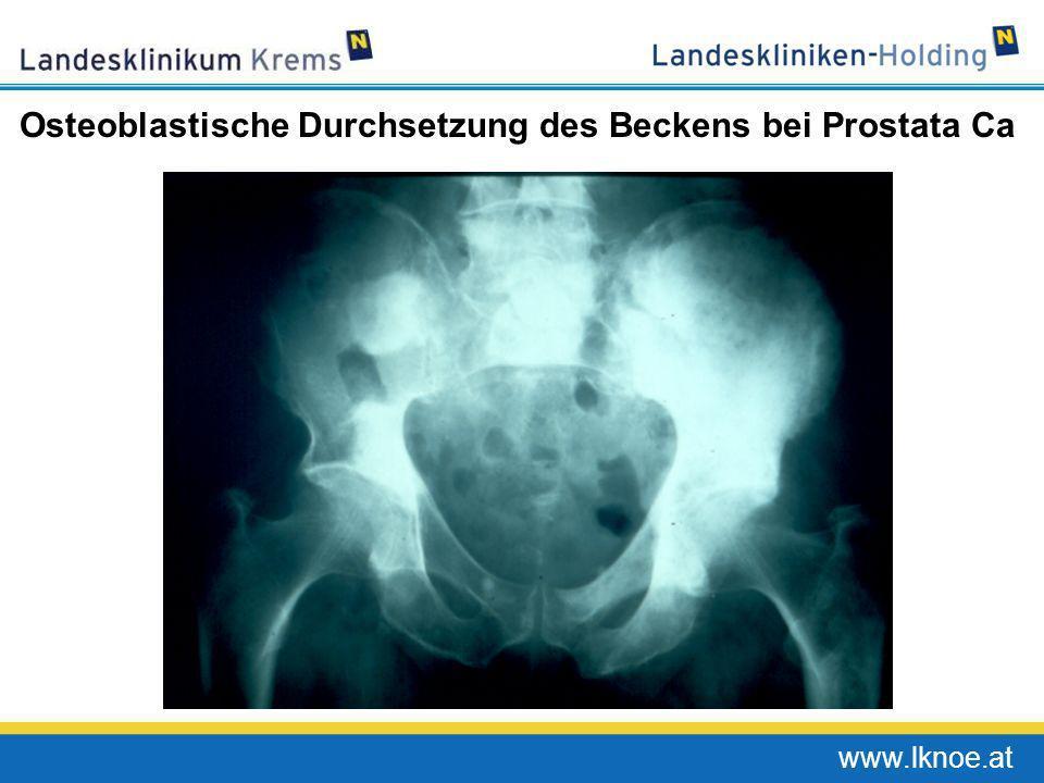 Osteoblastische Durchsetzung des Beckens bei Prostata Ca