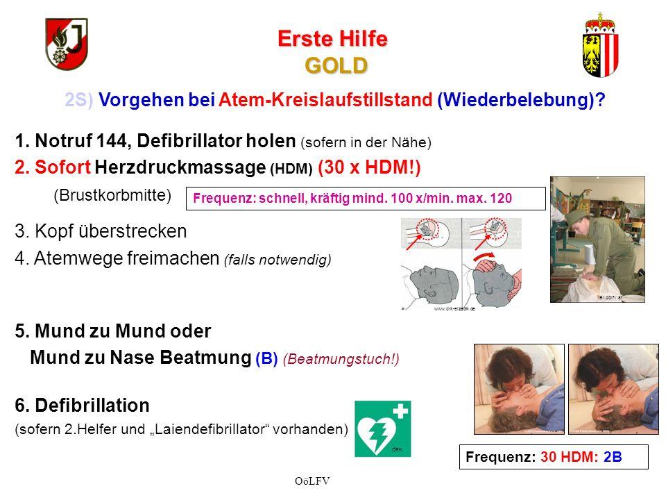 2S) Vorgehen bei Atem-Kreislaufstillstand (Wiederbelebung)