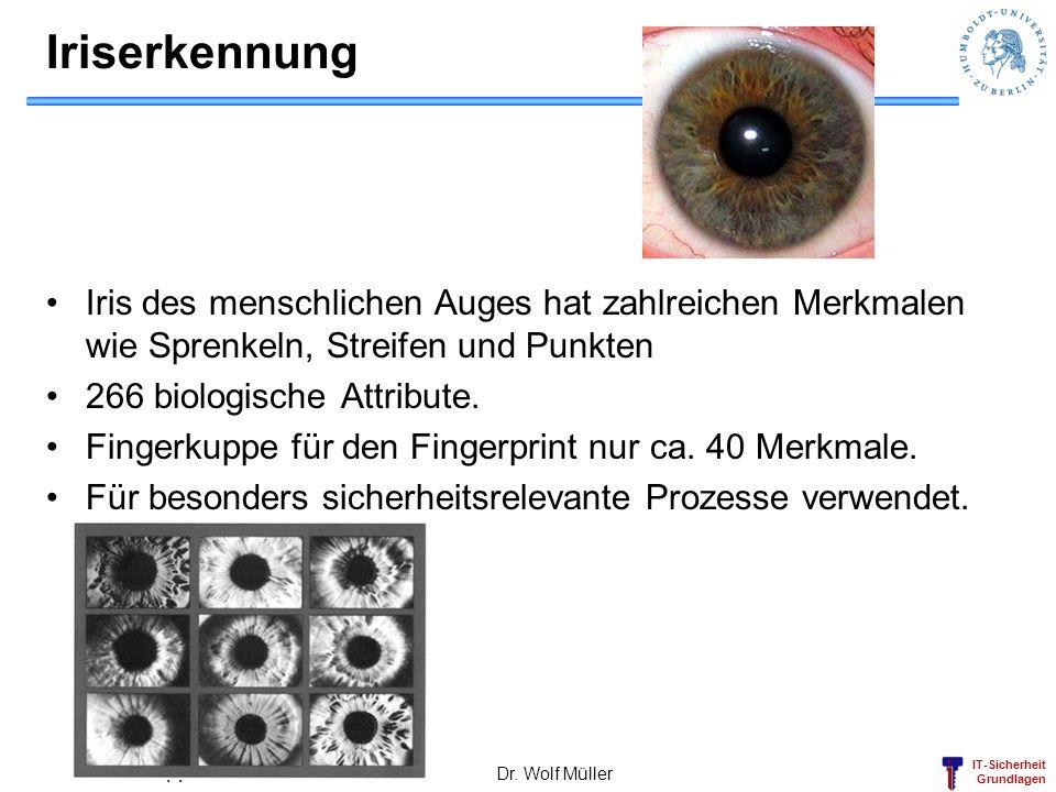 Iriserkennung Iris des menschlichen Auges hat zahlreichen Merkmalen wie Sprenkeln, Streifen und Punkten.