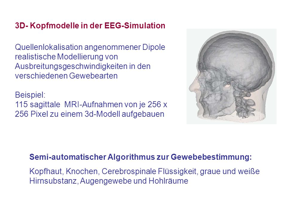 3D- Kopfmodelle in der EEG-Simulation