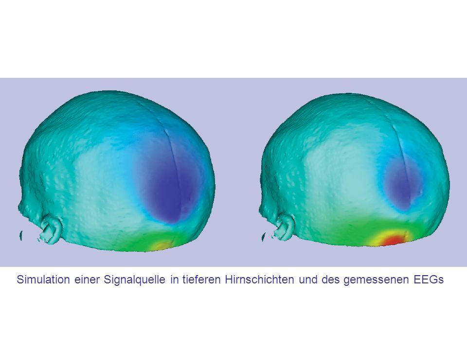 Simulation einer Signalquelle in tieferen Hirnschichten und des gemessenen EEGs