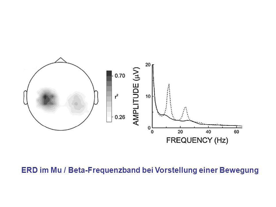 ERD im Mu / Beta-Frequenzband bei Vorstellung einer Bewegung