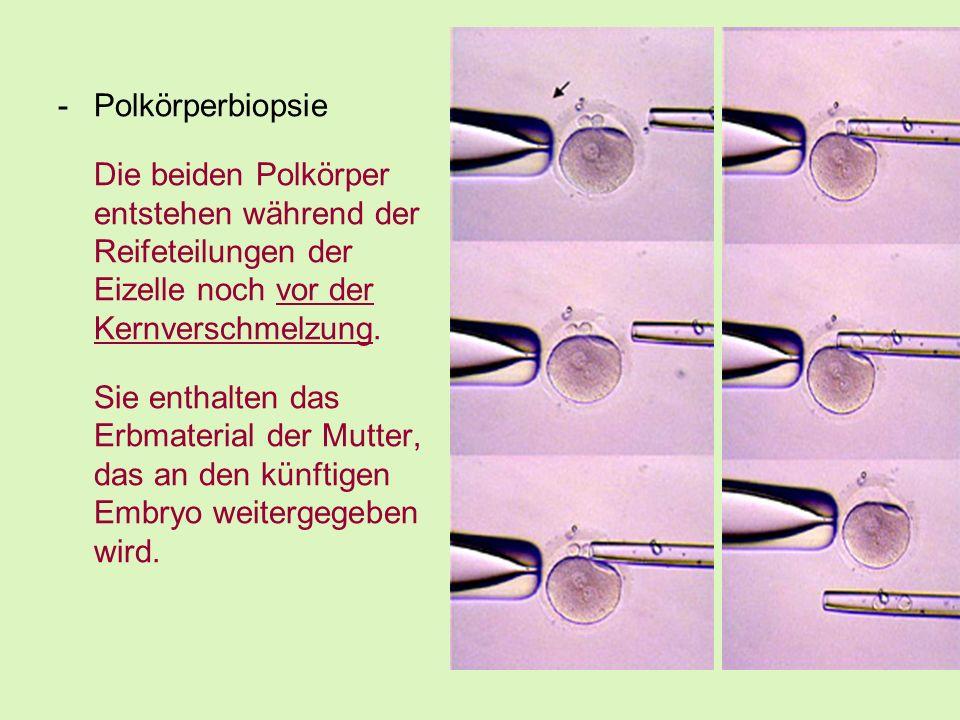 Polkörperbiopsie Die beiden Polkörper entstehen während der Reifeteilungen der Eizelle noch vor der Kernverschmelzung.