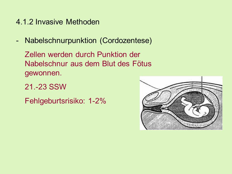 4.1.2 Invasive Methoden Nabelschnurpunktion (Cordozentese) Zellen werden durch Punktion der Nabelschnur aus dem Blut des Fötus gewonnen.
