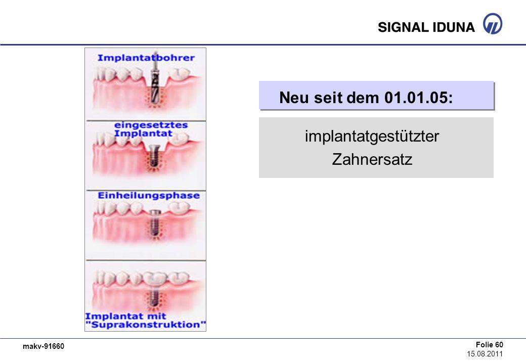 implantatgestützter Zahnersatz