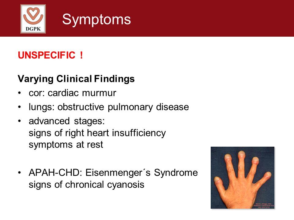 Symptoms UNSPECIFIC ! Varying Clinical Findings cor: cardiac murmur