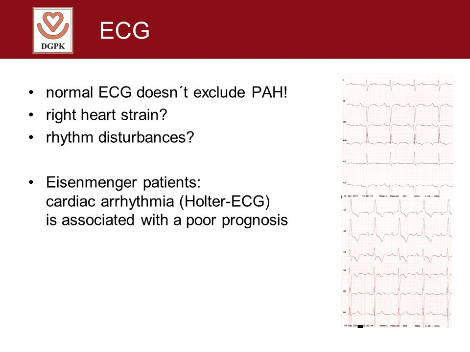 ECG normal ECG doesn´t exclude PAH! right heart strain