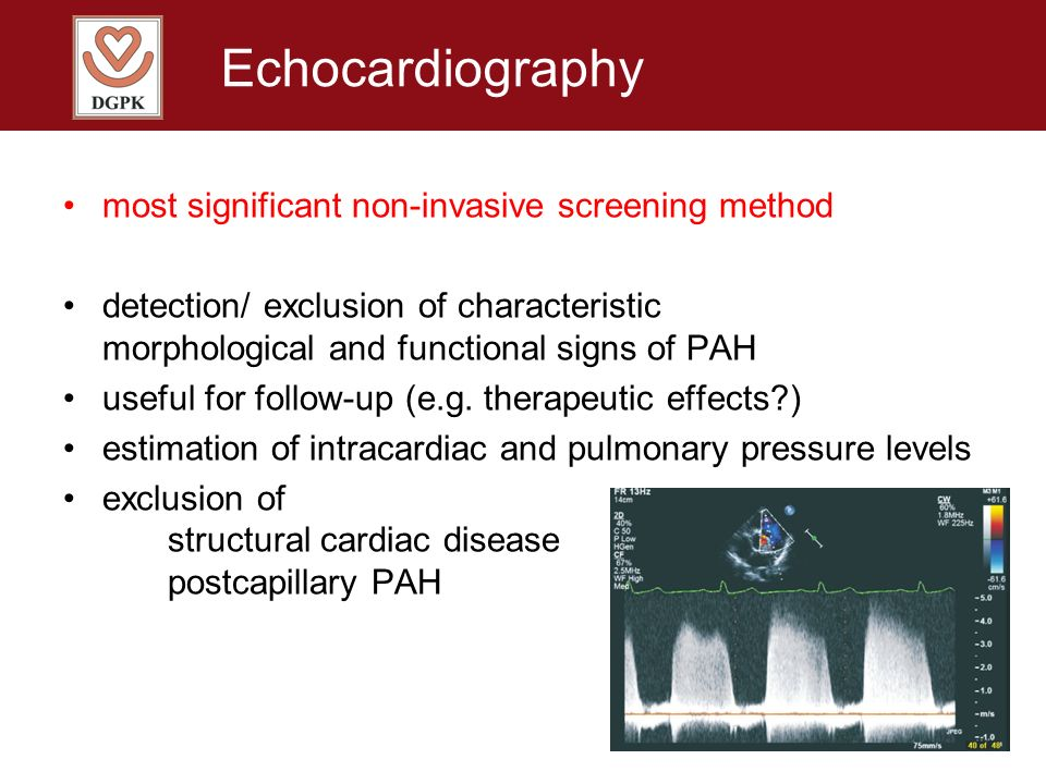 Echocardiography most significant non-invasive screening method