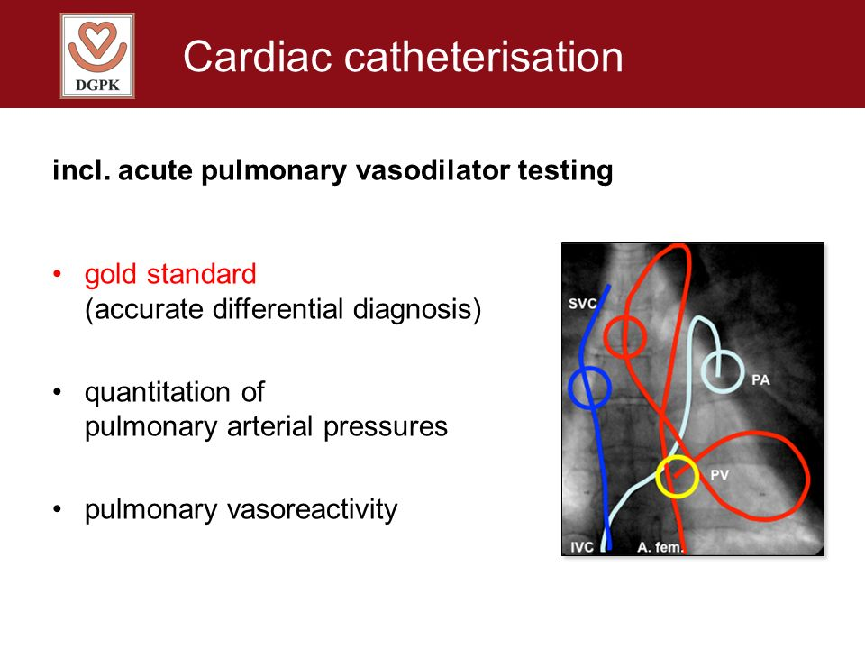 Cardiac catheterisation