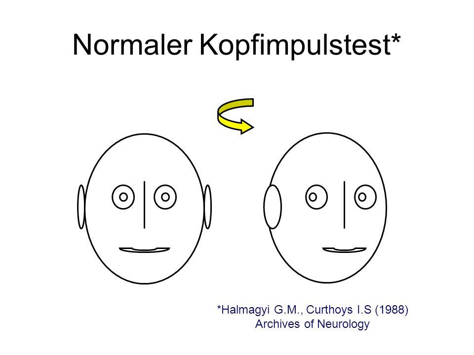 Normaler Kopfimpulstest*