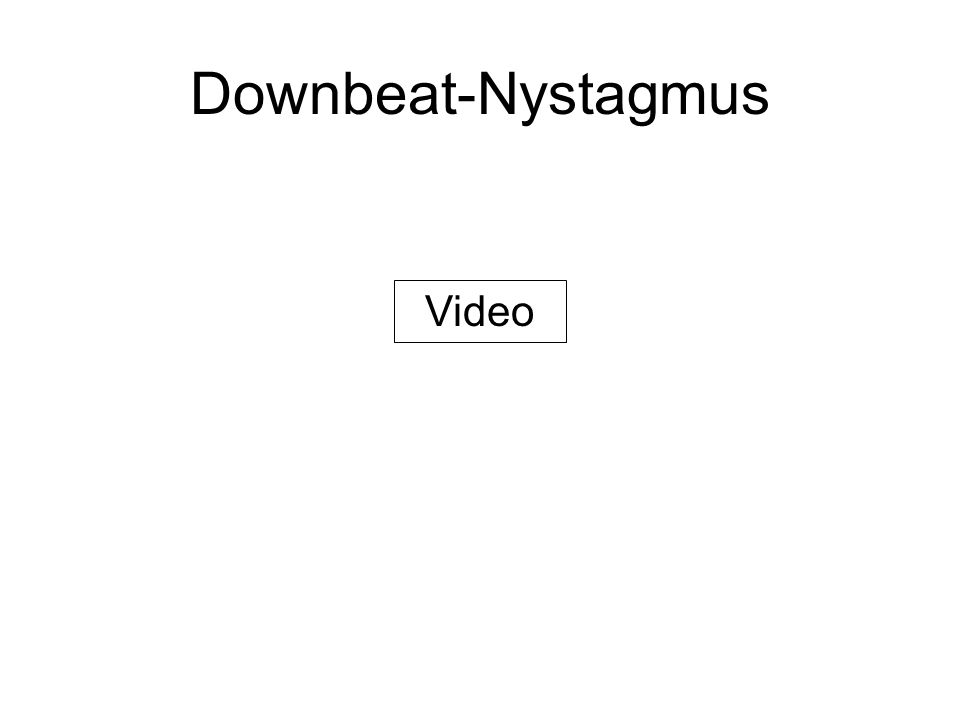 Downbeat-Nystagmus Video