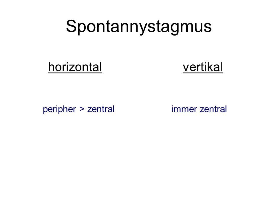 Spontannystagmus horizontal vertikal peripher > zentral