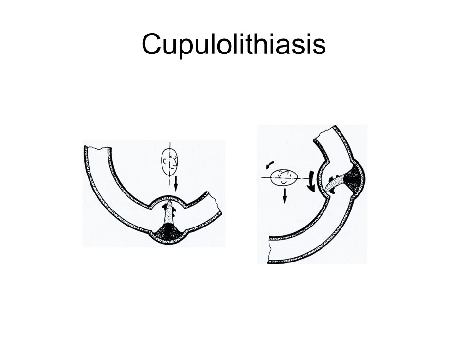 Cupulolithiasis