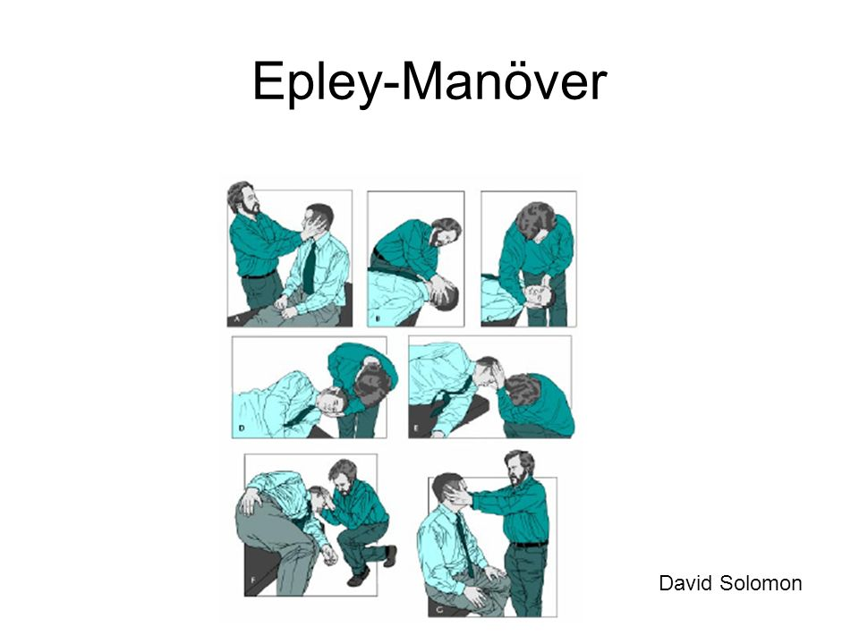 Epley-Manöver David Solomon