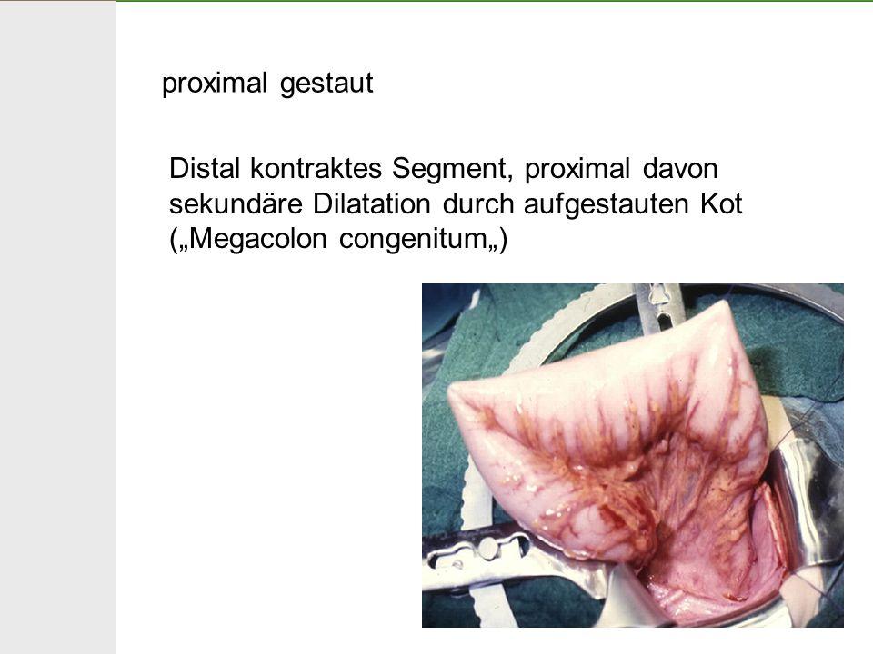"proximal gestaut Distal kontraktes Segment, proximal davon sekundäre Dilatation durch aufgestauten Kot (""Megacolon congenitum"")"