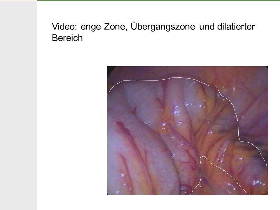 Video: enge Zone, Übergangszone und dilatierter Bereich
