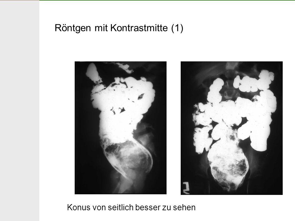 Röntgen mit Kontrastmitte (1)