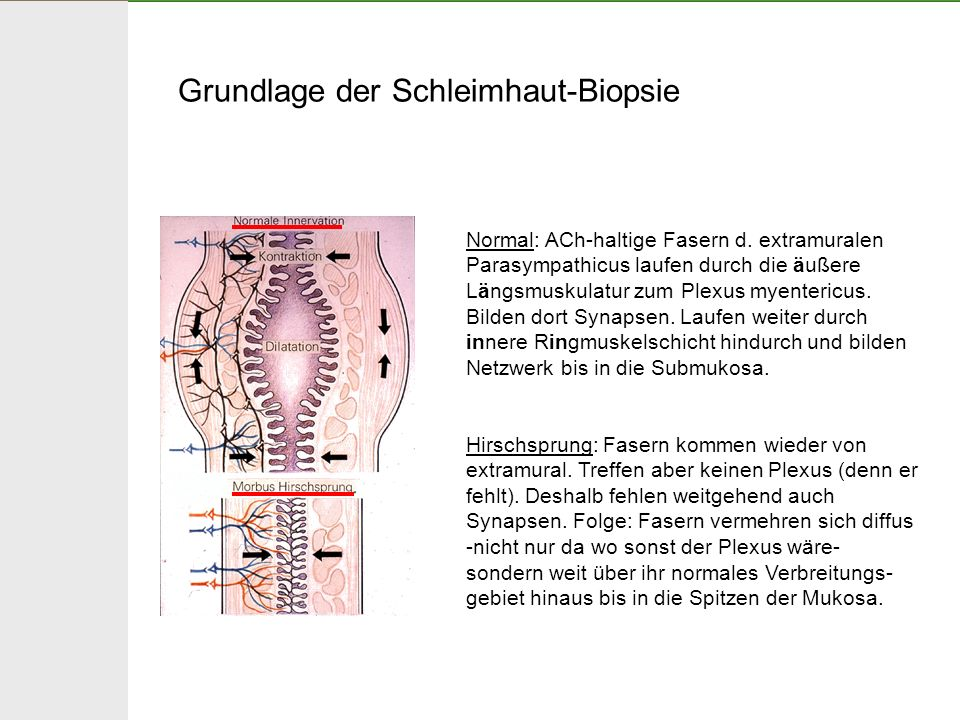 Grundlage der Schleimhaut-Biopsie