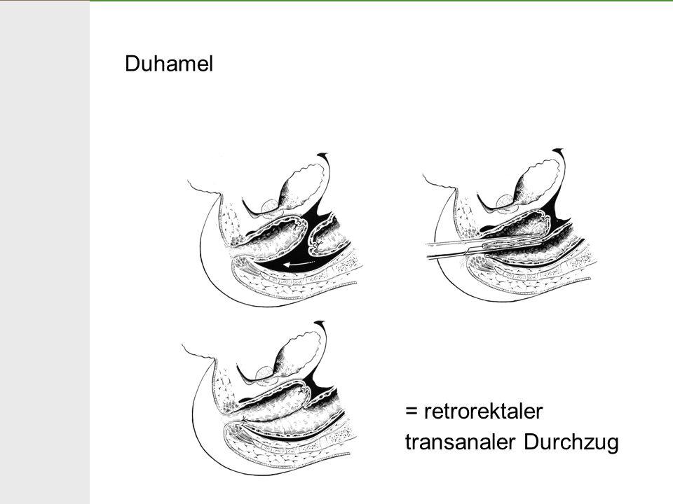 Duhamel = retrorektaler transanaler Durchzug