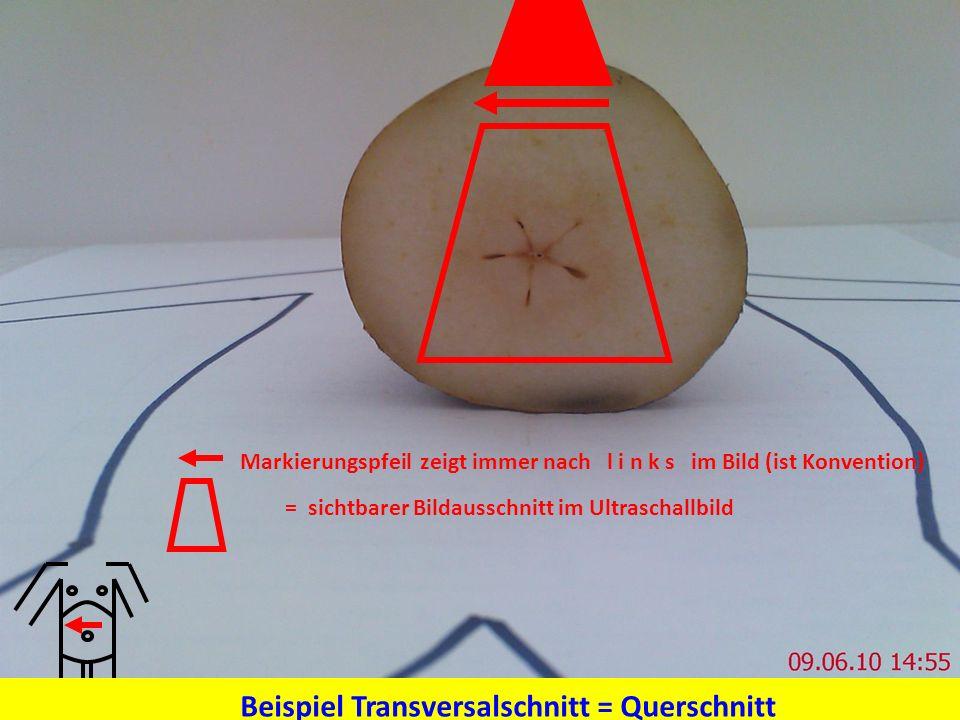 Beispiel Transversalschnitt = Querschnitt
