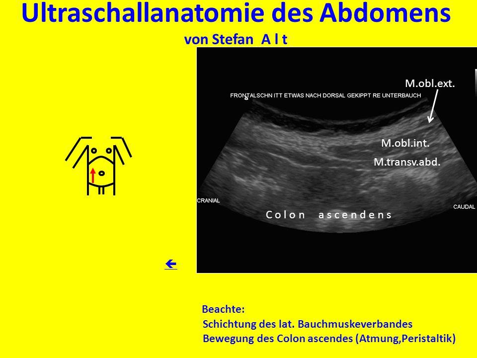Großzügig Was Ist Ultraschall Anatomie Zeitgenössisch - Anatomie Von ...