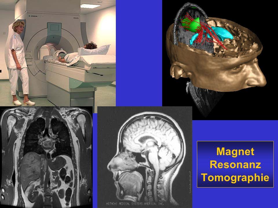 Magnet Resonanz Tomographie