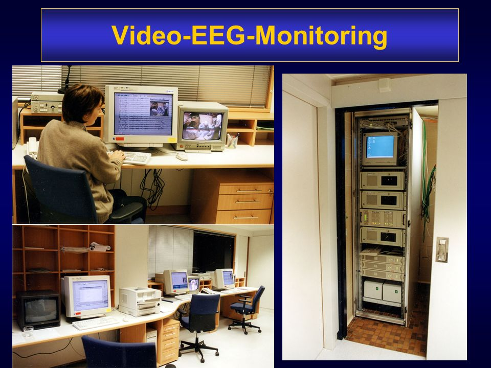 Video-EEG-Monitoring