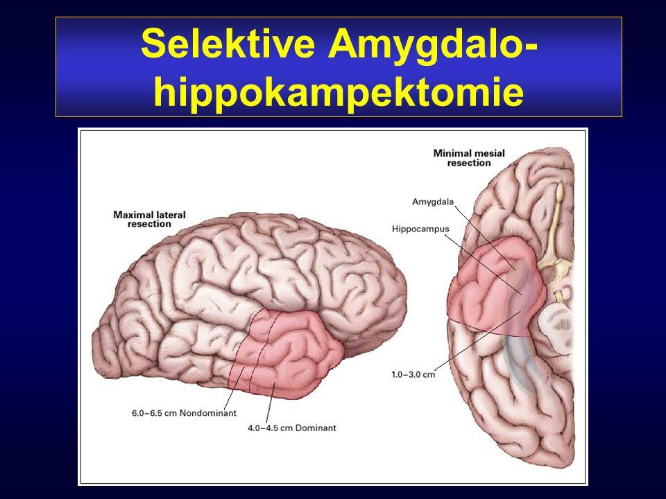 Selektive Amygdalo-hippokampektomie