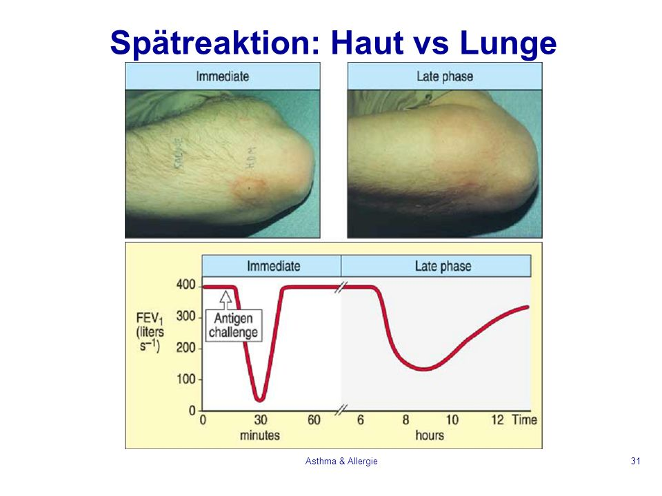Spätreaktion: Haut vs Lunge