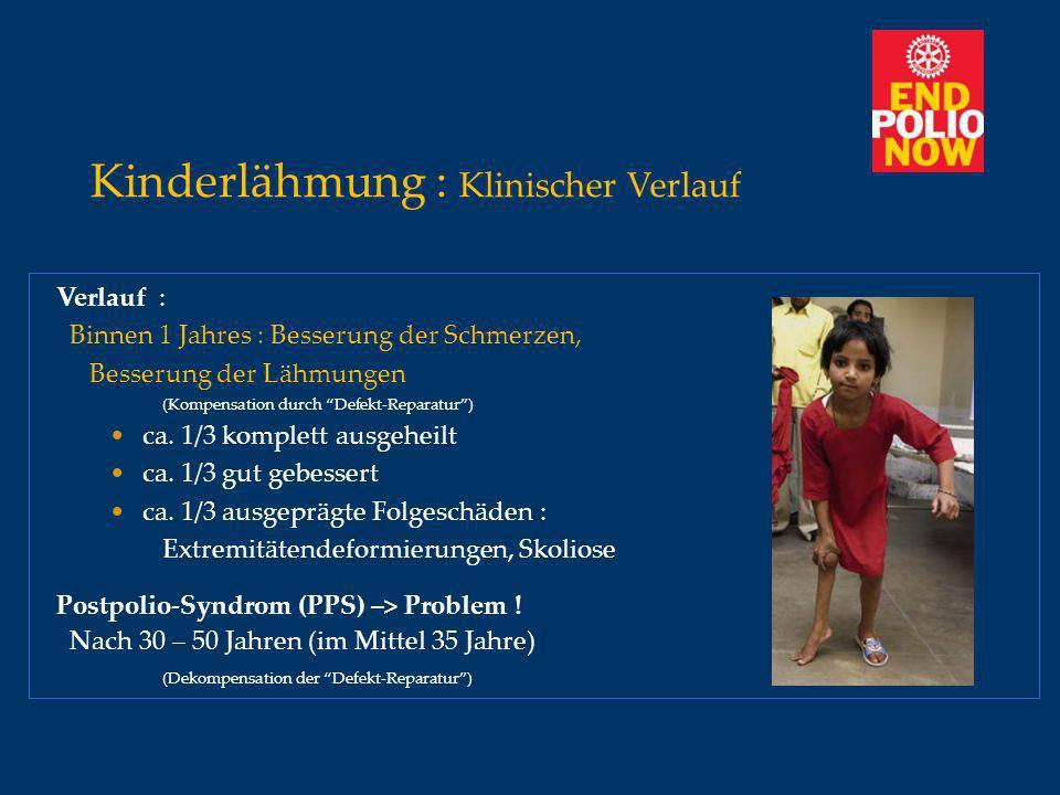 Kinderlähmung : Klinischer Verlauf