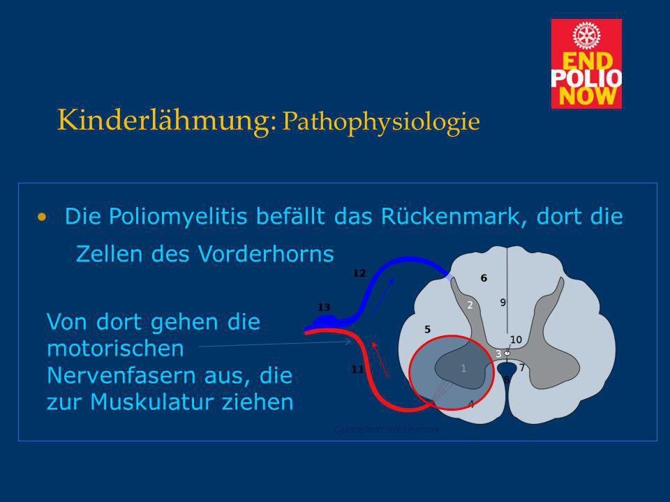 Kinderlähmung: Pathophysiologie