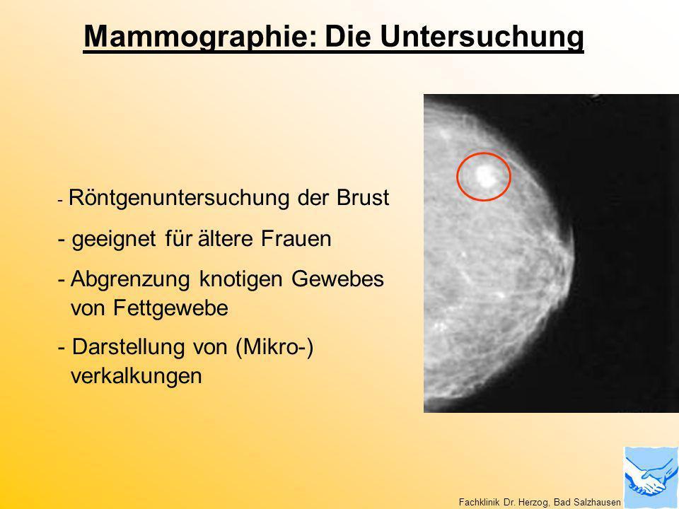 Mammographie: Die Untersuchung
