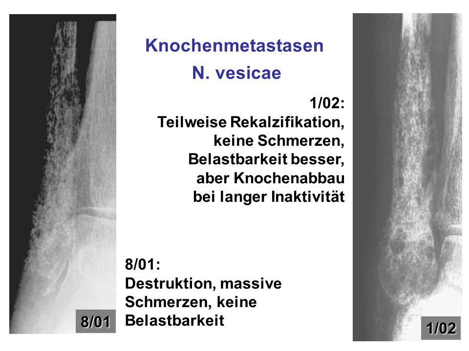 Knochenmetastasen N. vesicae