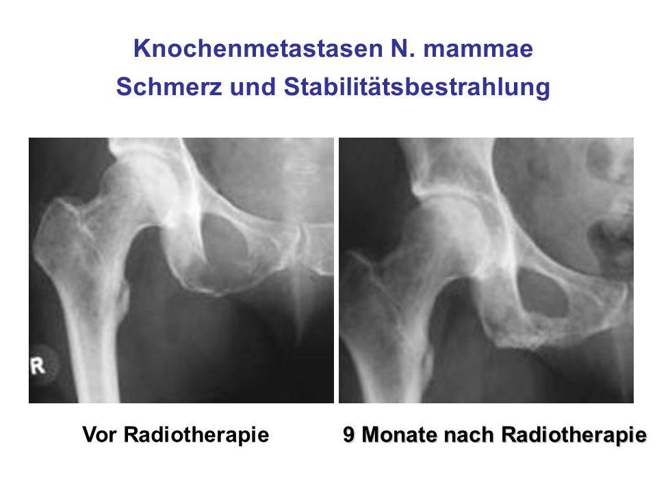 Knochenmetastasen N. mammae Schmerz und Stabilitätsbestrahlung