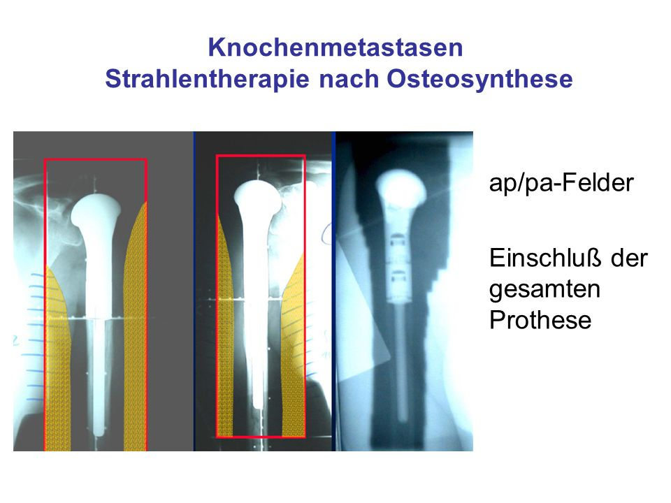 Knochenmetastasen Strahlentherapie nach Osteosynthese