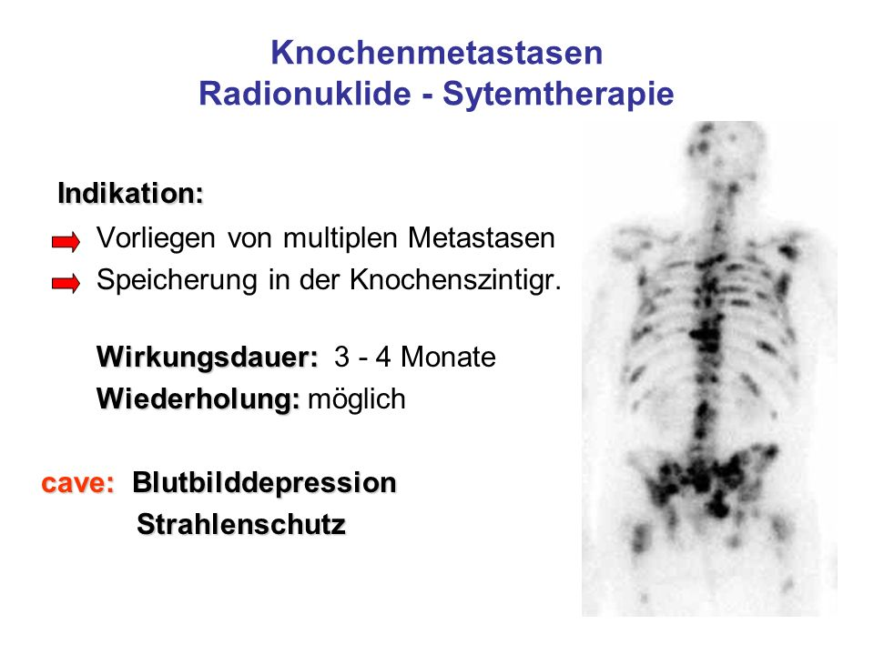 Knochenmetastasen Radionuklide - Sytemtherapie