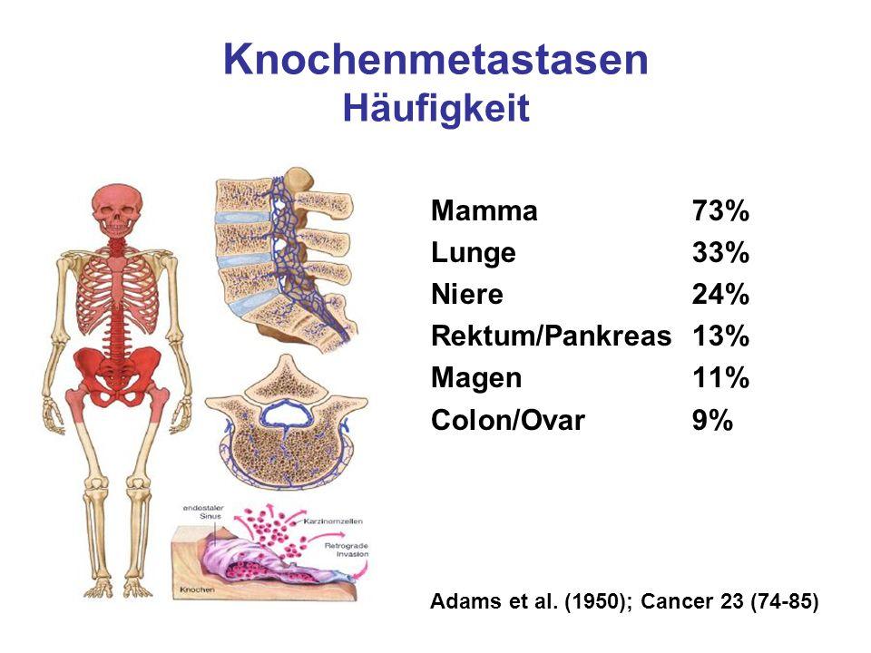 Knochenmetastasen Häufigkeit